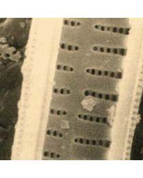 1297 Carta da filtro con diatomee